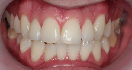 adult orthodontics in northern ireland
