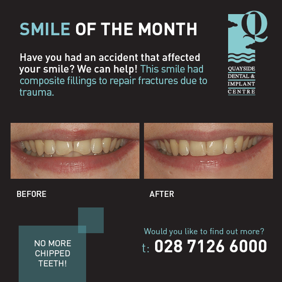 smile of the month august 2017