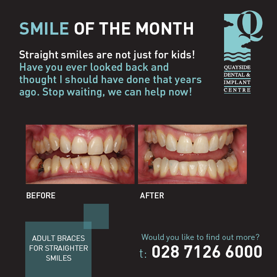 smile of the month June 2018